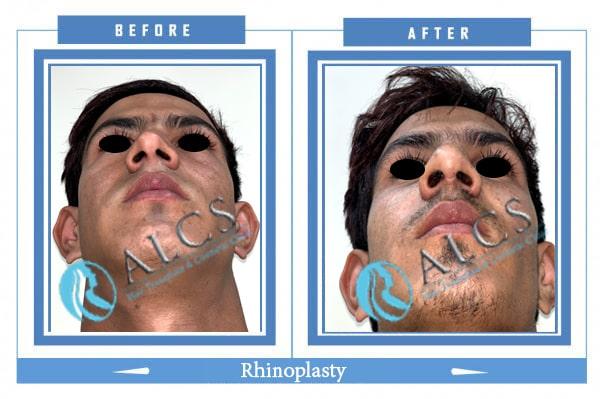, Rhinoplasty Pre Post