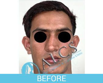 rhinoplasty in jaipur, RHINOPLASTY