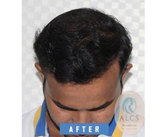 bio dht hair transplant in jaipur, BIO DHT