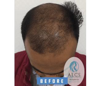 bio fue hair transplant in jaipur, BIO FUE