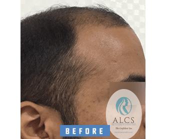 fue hair transplant in jaipur, Fue Hair