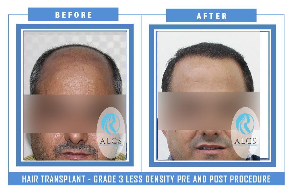 , Hair Transplant Pre Post