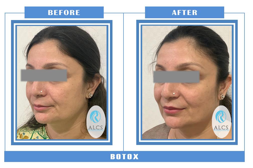 , Botox Pre Post